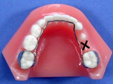 Orthodontic space maintainer