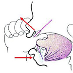 Diagram of thumbsicking causing problems in orthodontic patients
