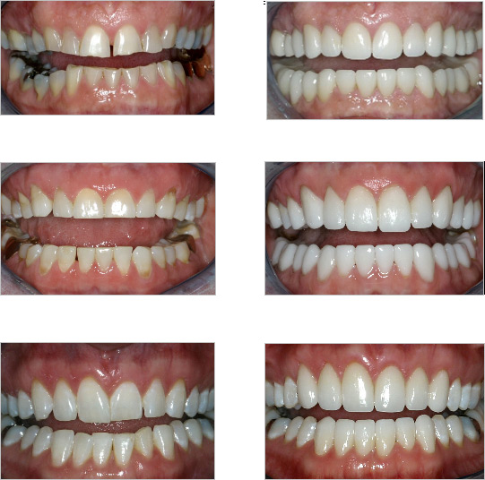 Before and After Orthodontic and Restoritive Dentistry Results for TMJ and Bruxing