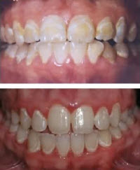 White Marks on Teeth After Braces