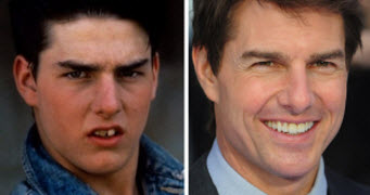Tom Cruise before and After Braces
