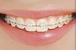 Clear Braces in New York