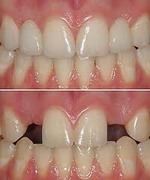 Missing lateral teeth before and after replacments