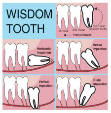 Wisdom teeth removal Palo Alto CA