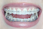 Clean braces Dr. Gordon C. Honig, DMD Newark Middletown DE