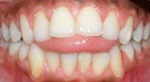 Example of Tongue Thrust Porter Orthodontics in Baton Rouge LA