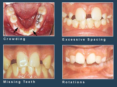 Common Problems at Greater Houston Orthodontics in Houston TX
