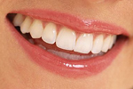 The Perfect Smile at Honig orthodontics in Pickerington OH