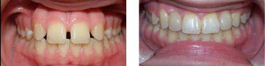 Before and After at Honig orthodontics in Newark DE