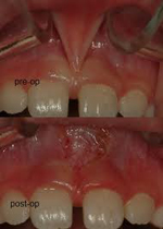 Before and After Frenectomy surgery