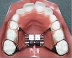 palatal expander Honey Orthodontics Gurnee, IL