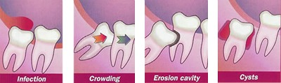 Problems with Wisdom Teeth Green Bay WI