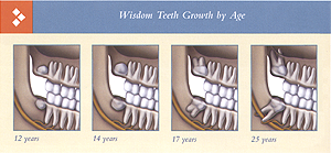 Wisdom teeth eruption by age