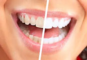 Whitening teeth Green Bay WI