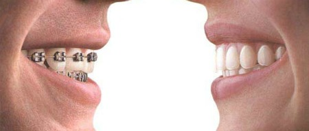 Braces vs Invisalign Gordon C. Honig, DMD Middletown Newark, DE