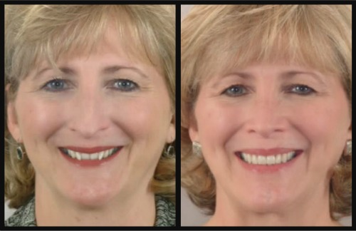 Houston TX Reverse aging with orthodontics