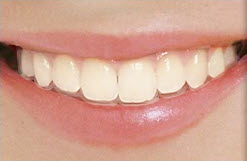 Clear Correct Aligners Honey Orthodontics Gurnee, IL