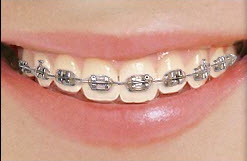 Tracitional Metal Braces Honey Orthodontics Gurnee, IL
